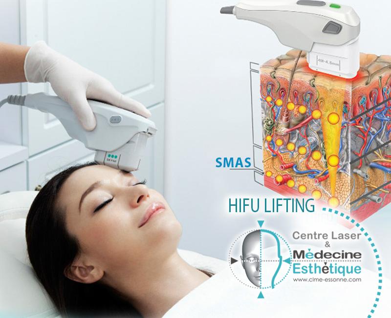 HIFU - Ultrasons Focalisés de Forte Intensité» Centre Épilation Laser et Médecine Esthétique Essonne »HIFU-Lifting-Visage-Ultrasons Focalisés de Forte Intensité