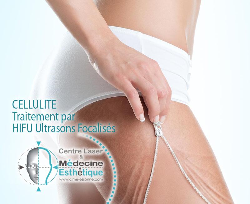 CELLULITE Traitement par HIFU Ultrasons Focalisés de Forte Intensité » Centre Épilation Laser et Médecine Esthétique - Essonne