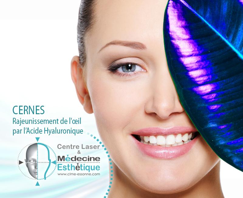 CERNES Rajeunissement de l'oeil par l'Acide Hyaluronique » Centre Épilation Laser et Médecine Esthétique - Essonne
