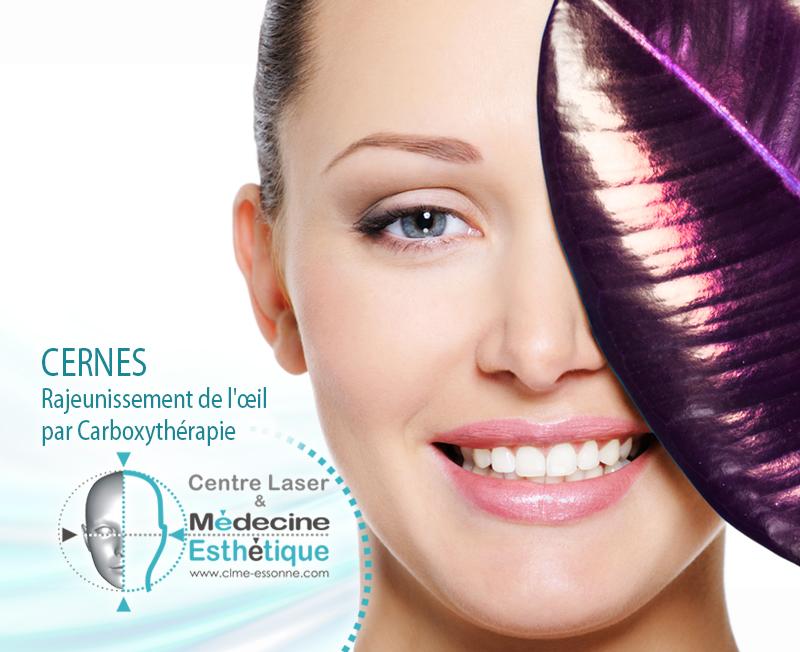 CERNES Rajeunissement de l'oeil par Carboxythérapie » Centre Épilation Laser et Médecine Esthétique - Essonne