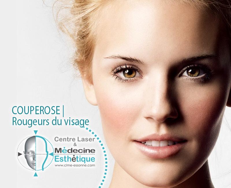 Couperose Rougeurs du visage » Centre Épilation Laser et Médecine Esthétique - Essonne