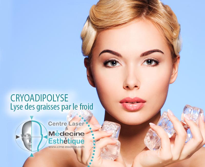 Cryoadipolise - Lise des graisses par le froid » Centre Épilation Laser et Médecine Esthétique - Essonne