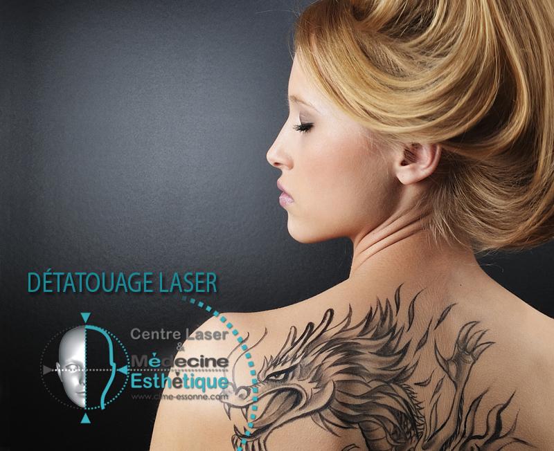 Détatouage Laser » Centre Épilation Laser et Médecine Esthétique - Essonne
