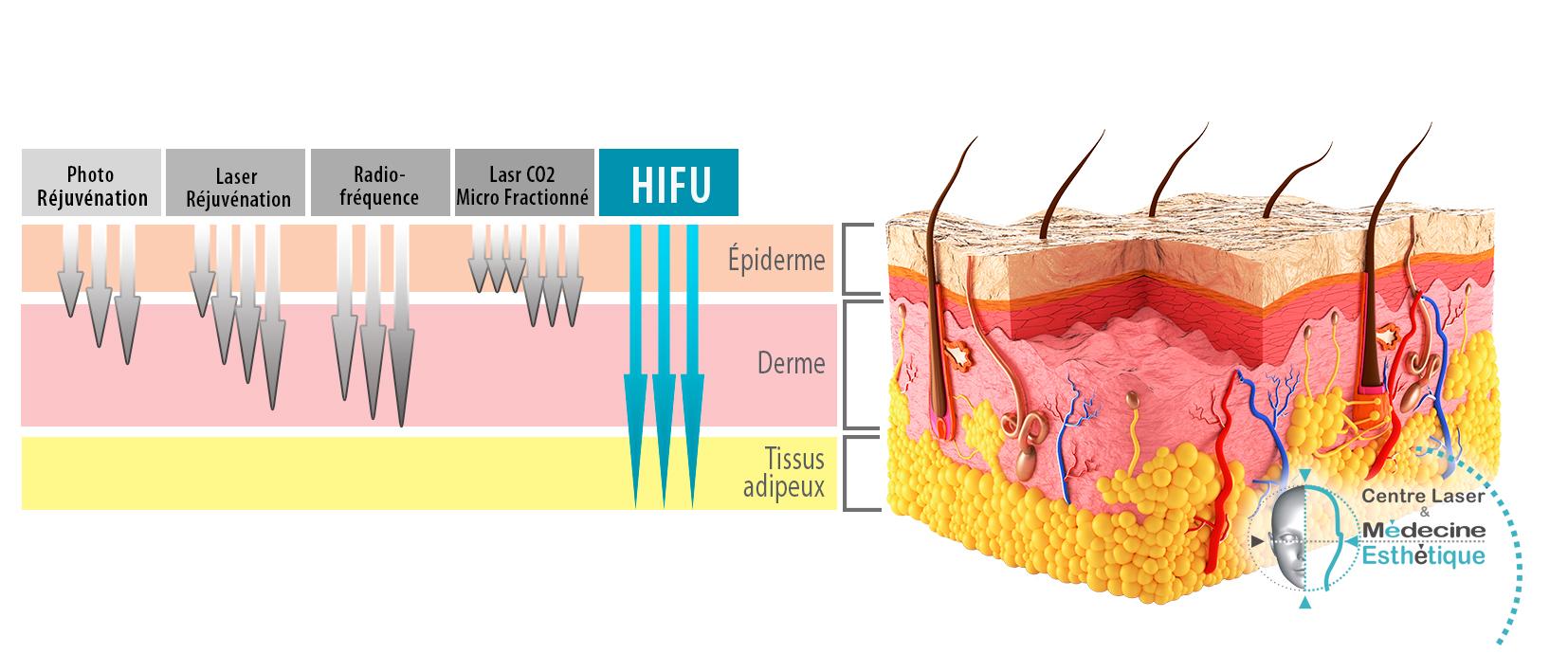 HiFu – Face & Body Reshaped – Centre Épilation Laser et