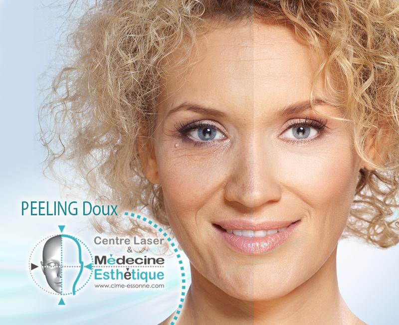 Peeling doux - Traitement de l'acné, les peaux grasses, tâches brunes et ridules » Centre Épilation Laser et Médecine Esthétique - Essonne