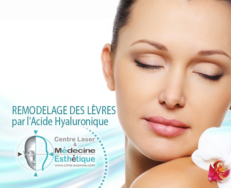 Remodelage des lèvres par l'Acide Hyaluronique » Centre Épilation Laser et Médecine Esthétique - Essonne