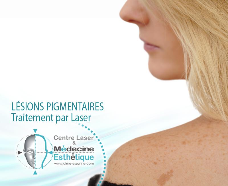 Traitement des lésions pigmentaires bénignes par laser TatooStar » Centre Épilation Laser et Médecine Esthétique - Essonne