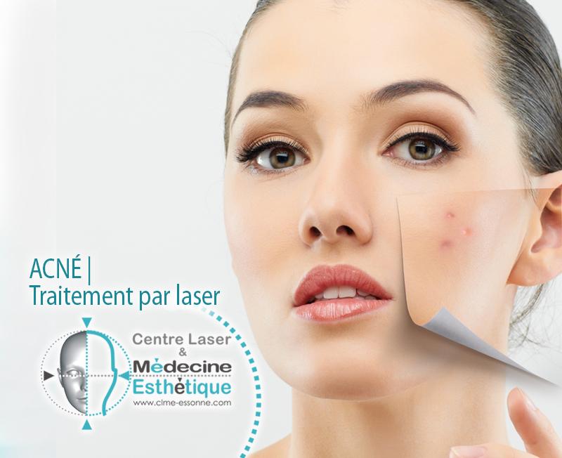 Traitement esthétique de l'acné par laser médical » Centre Épilation Laser et Médecine Esthétique - Essonne