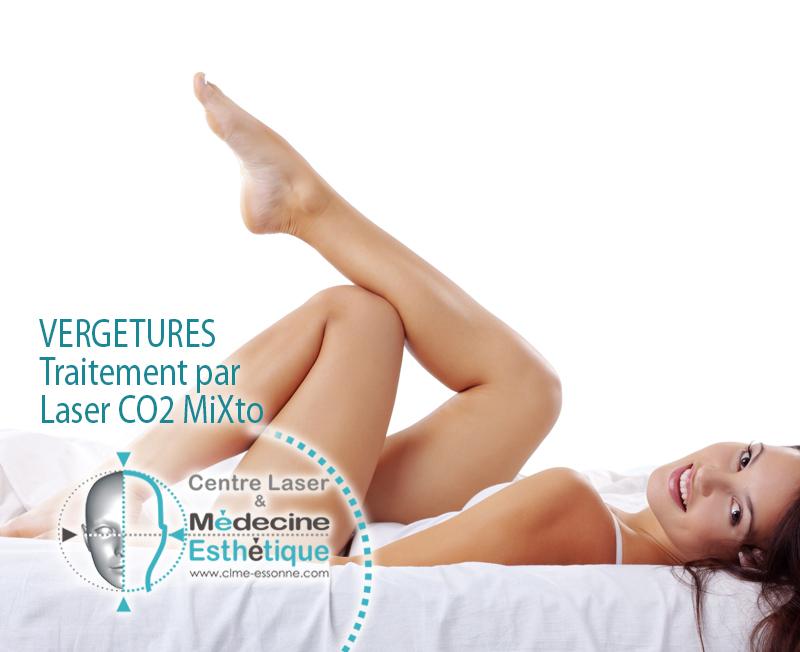 Vergetures -Traitement par -Laser CO2 MiXto » Centre Épilation Laser et Médecine Esthétique - Essonne