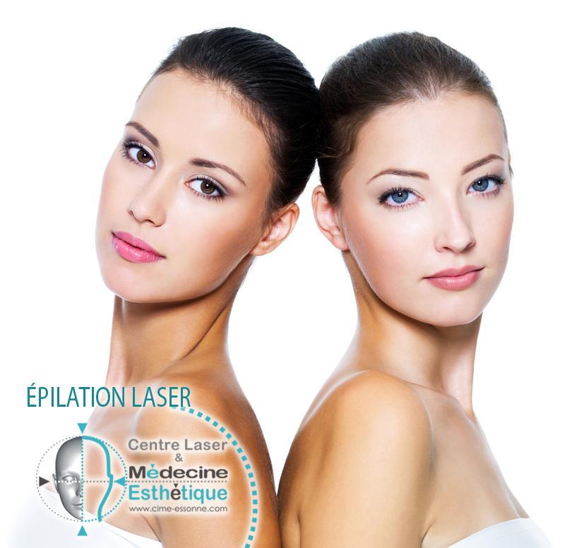 » Centre Épilation Laser et Médecine Esthétique »Épilation Laser définitive - visage et corps - Femme