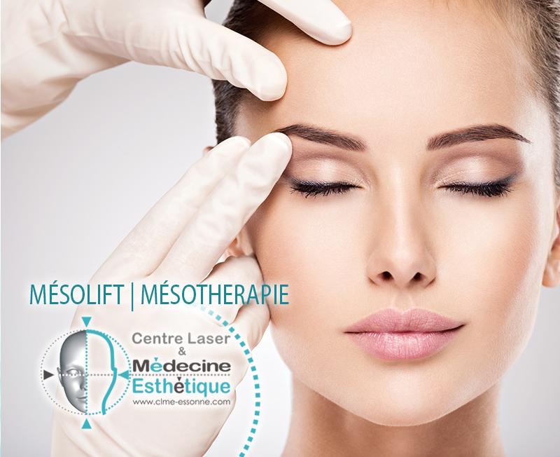 Mésolift, Mésotherapie pour le rajeunissement du visage» Centre Épilation Laser et Médecine Esthétique - Essonne